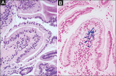 View of Duodenal siderosis: a rare clinical finding in a